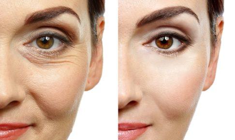 皺、ほうれい線の解消