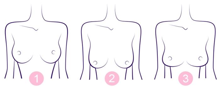 乳房にかかる重力による長期的影響