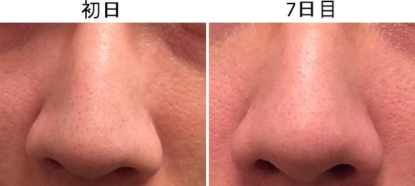 鼻の毛穴の変化